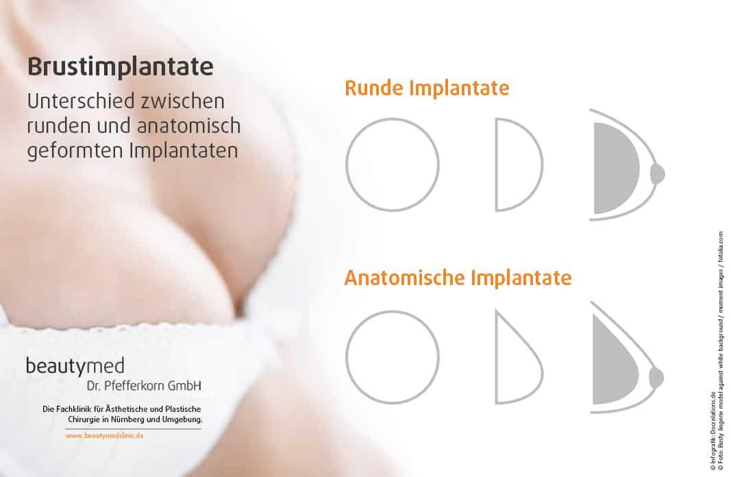 Brustimplantate zu kleine Brustvergrößerung