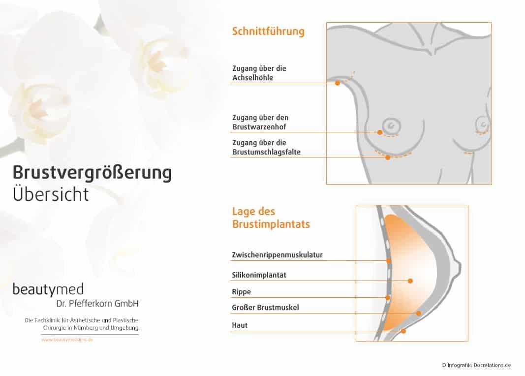 Brustvergrößerung Nürnberg
